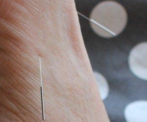 acupuncture aix en provence